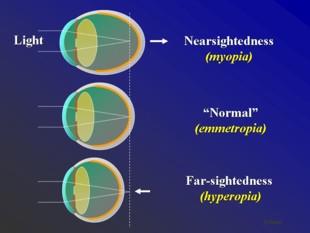 Laser muopias