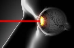 Laser ματιών για μυωπία